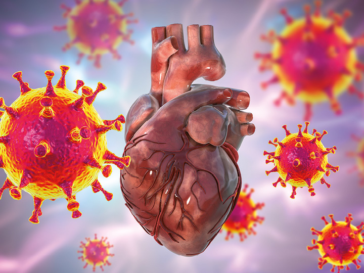 Kardiomarkery a COVID-19