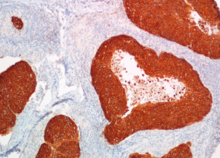 Různé způsoby sušení tkáňových řezů pro imunohistochemické vyšetření