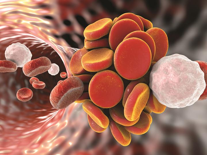 Dědičná trombofilie: Osobní cesta genetické poradkyně