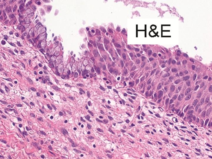 Inovativní portfolio pro prevenci a sledování úspěšnosti léčby cervikálního karcinomu