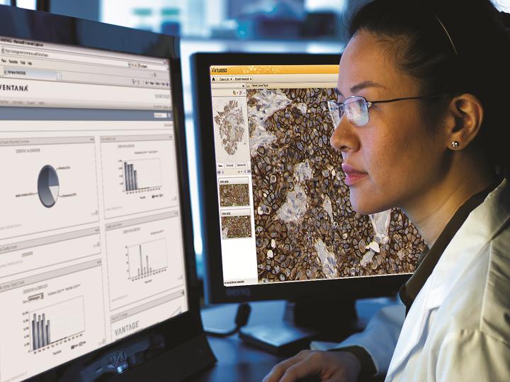 Společnost Roche představila první podpůrnou softwarovou aplikaci  pro klinická rozhodování v oblasti onkologické péče