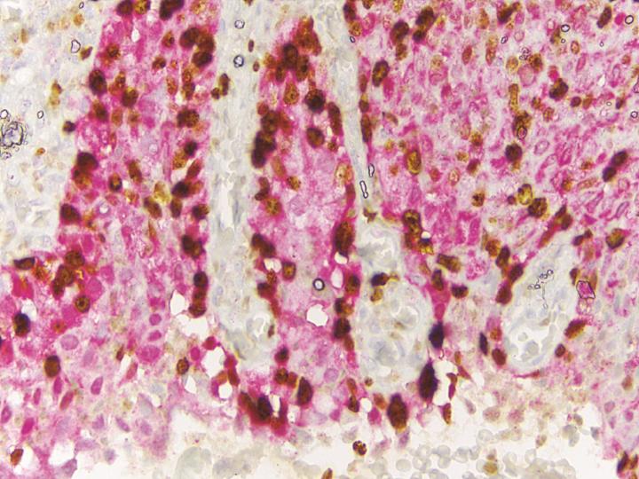 Duální imunohistochemické barvení pomocí BenchMark ULTRA na pracovišti MDgK-plus