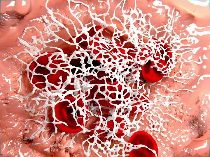 Hemokoagulační kaskáda trochu jinak