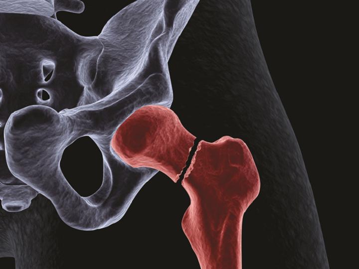 Zajímavá fakta o osteoporóze