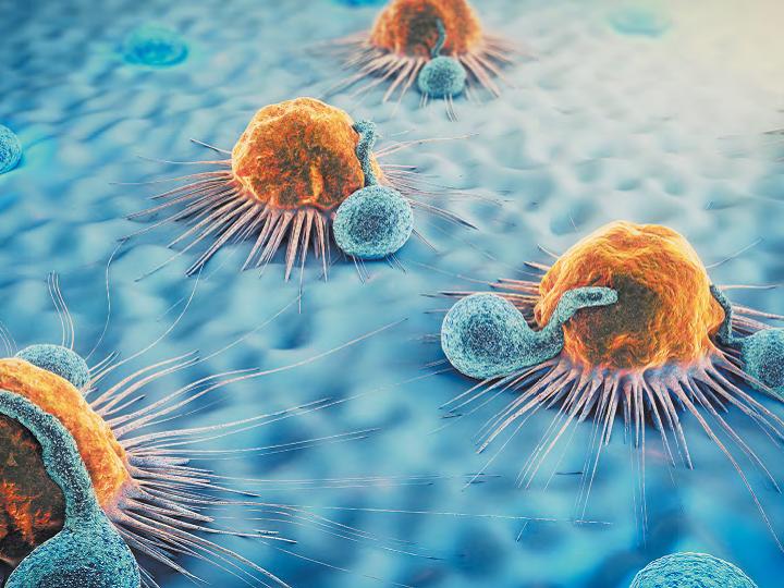 Podpora rozhodování lékařů u onkologických pacientů – NAVIFY®