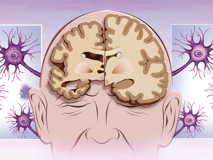 Porovnání dvou analytických metod stanovení neurodegenerativních markerů (beta-amyloid, celkový a fosforylovaný tau protein)